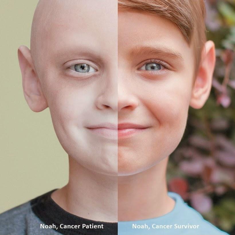 Alcalinidad Celular en el Origen y Progresión del Cáncer – Quimioterapia